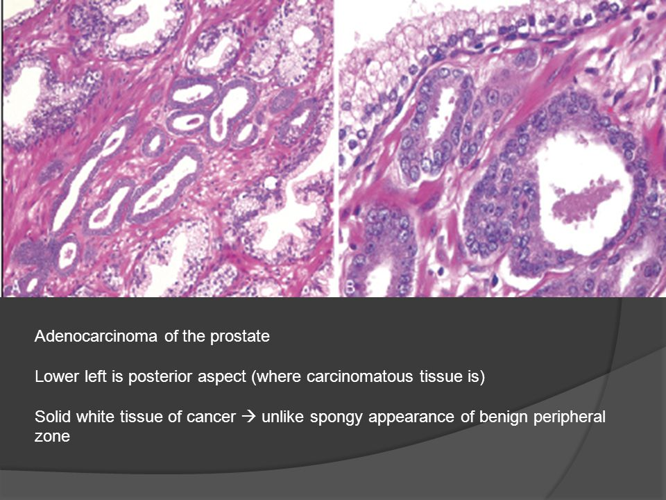 Adenocarcinoma of the prostate