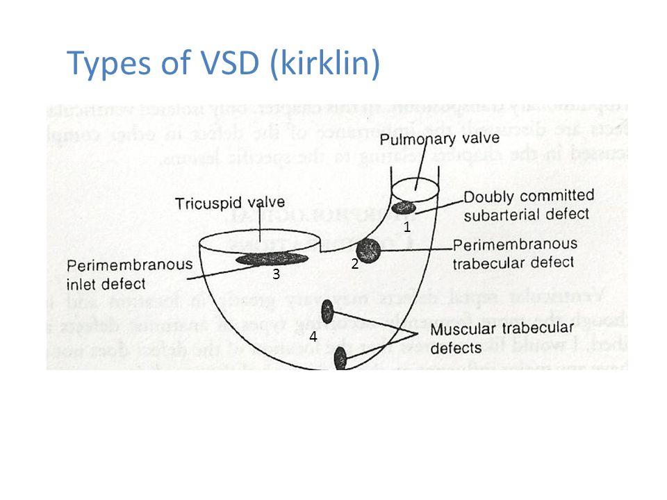 ventricular septal defect vsd pdf