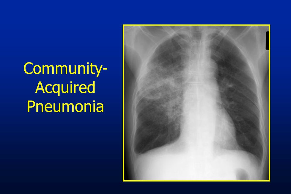 community acquired pneumonia core measure Core measures are joint commission required measures that were established using evidence based practice, and over time have demonstrated better.