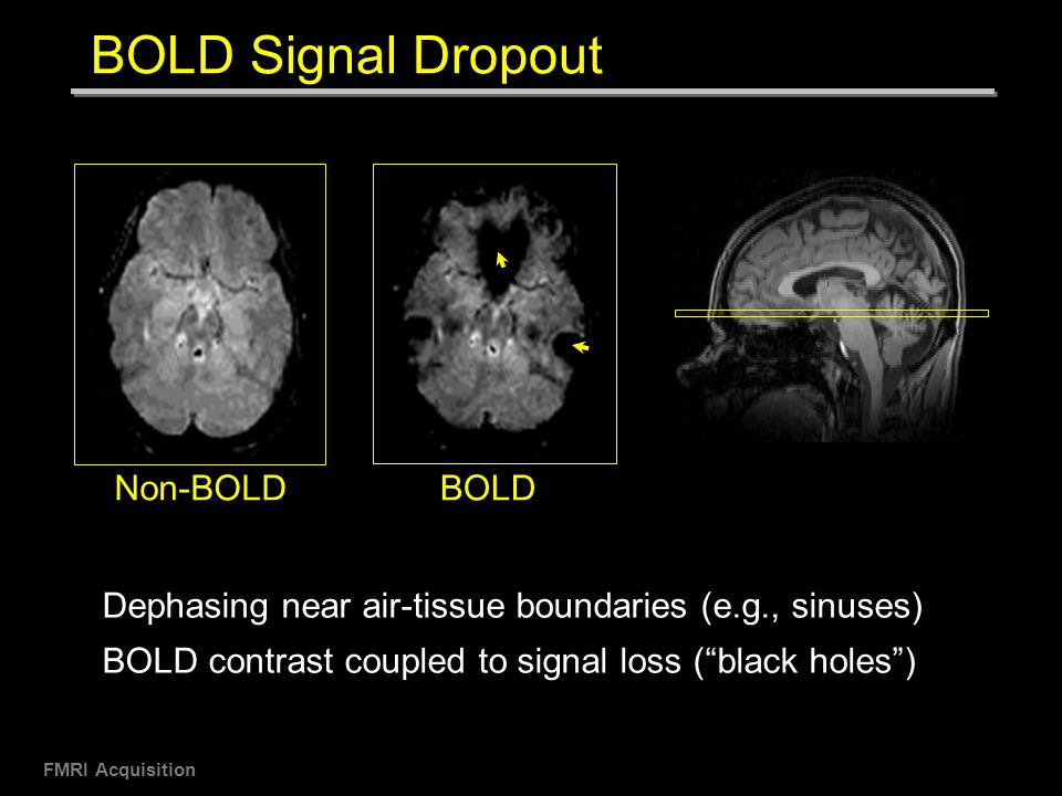 Bold fMRI - asfnr.org