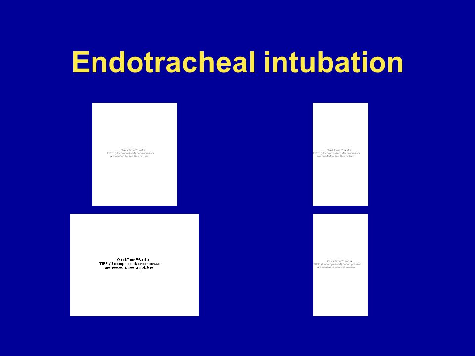endotracheal intubation video - photo #42