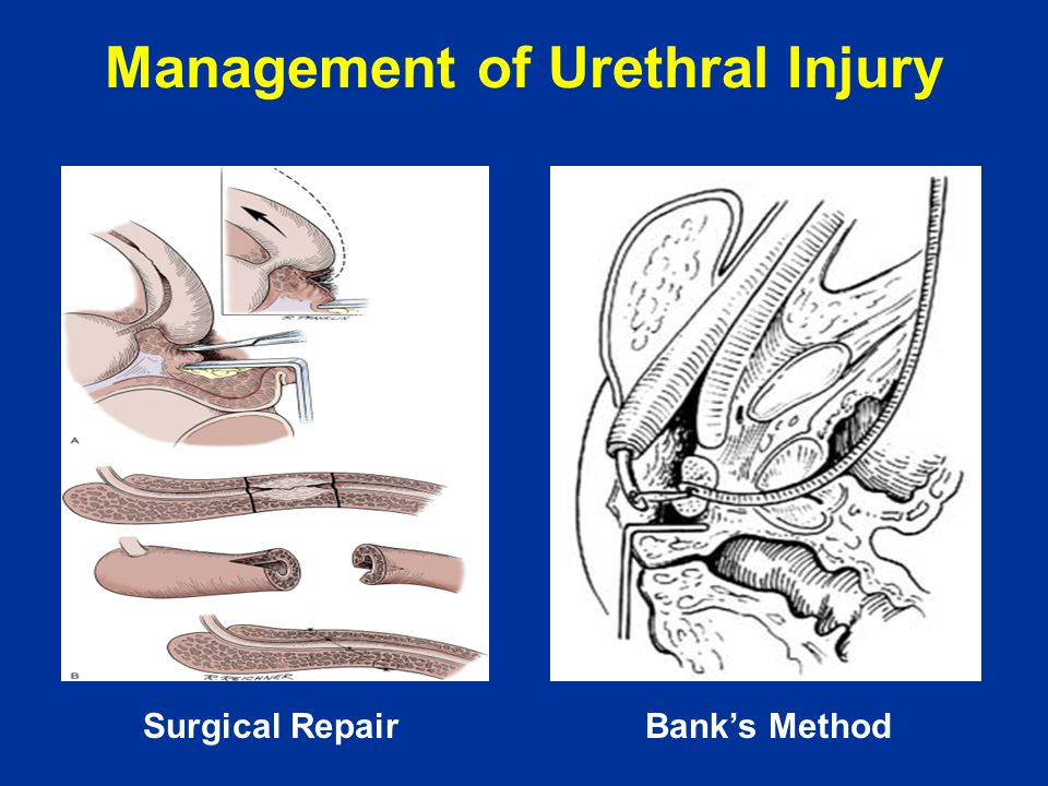 Management of Urethral Injury