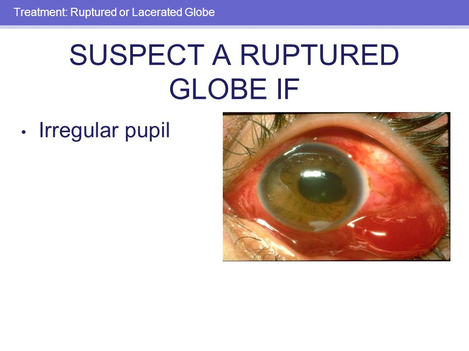 EYE TRAUMA: INCIDENCE 2.5 million eye injuries per year in ...