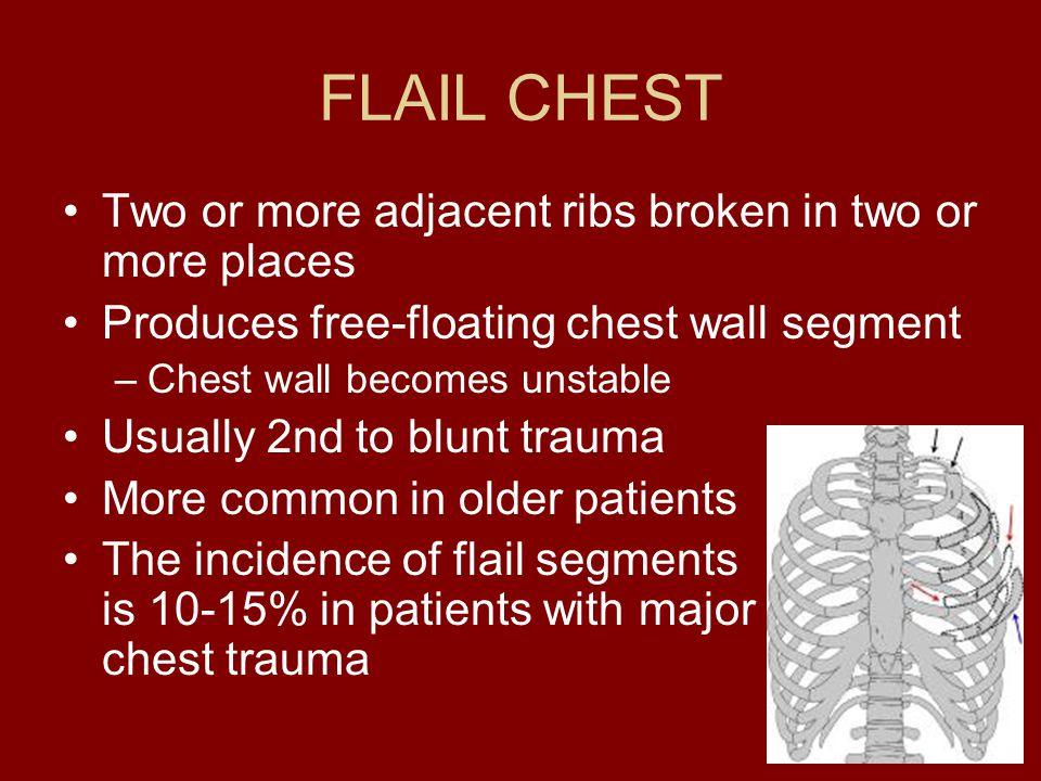 FLAIL CHEST Two or more adjacent ribs broken in two or more places