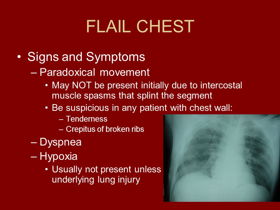 FLAIL CHEST Signs and Symptoms Paradoxical movement Dyspnea Hypoxia