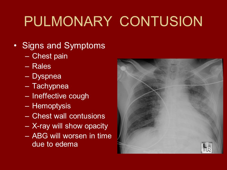 PULMONARY CONTUSION Signs and Symptoms Chest pain Rales Dyspnea