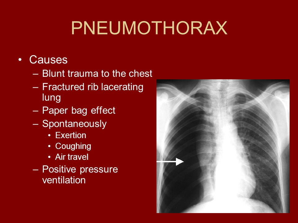 PNEUMOTHORAX Causes Blunt trauma to the chest