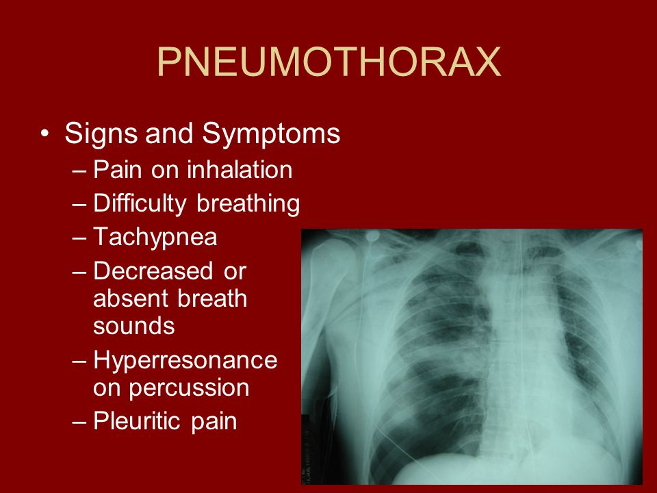 PNEUMOTHORAX Signs and Symptoms Pain on inhalation