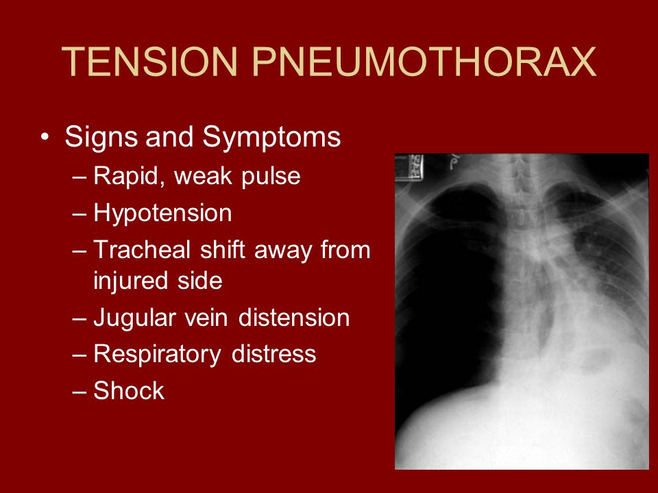 TENSION PNEUMOTHORAX Signs and Symptoms Rapid, weak pulse Hypotension