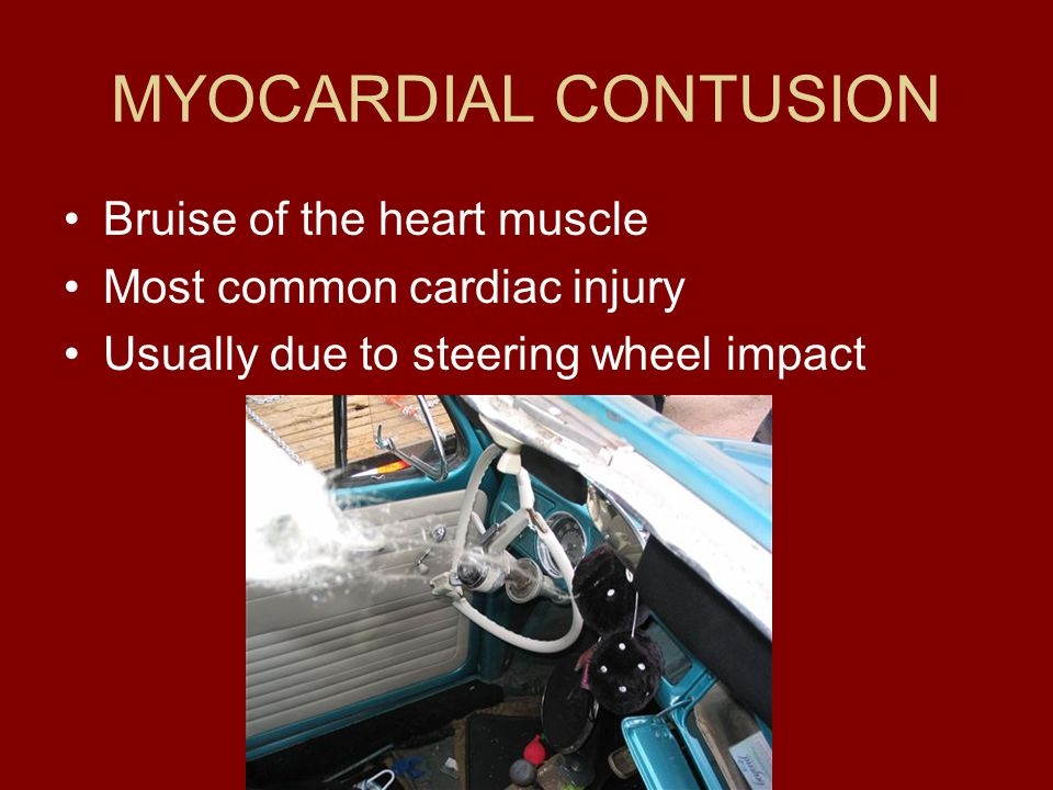 MYOCARDIAL CONTUSION Bruise of the heart muscle