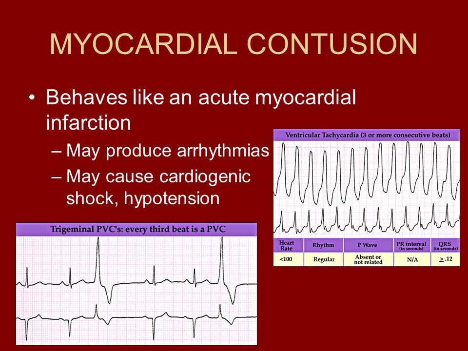 MYOCARDIAL CONTUSION Behaves like an acute myocardial infarction