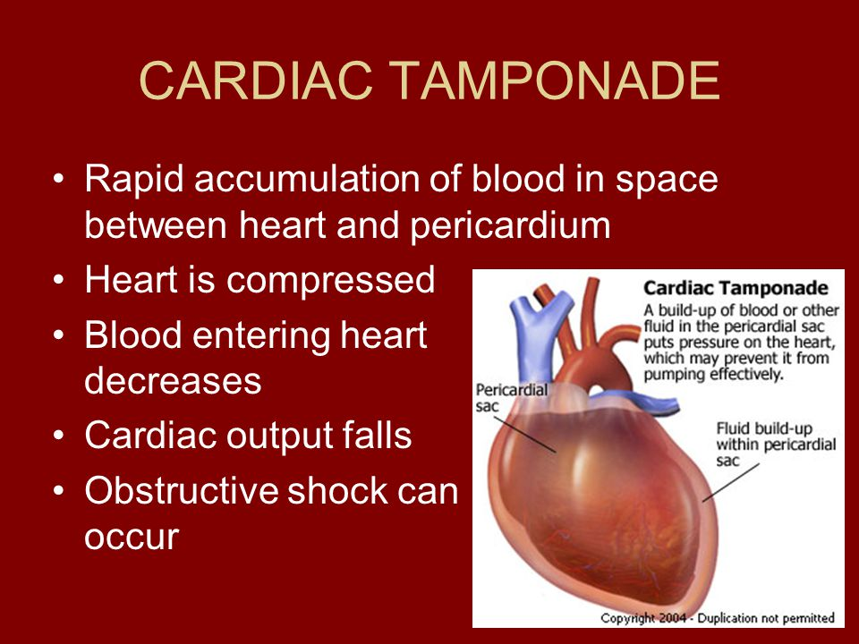 CARDIAC TAMPONADE Rapid accumulation of blood in space between heart and pericardium. Heart is compressed.