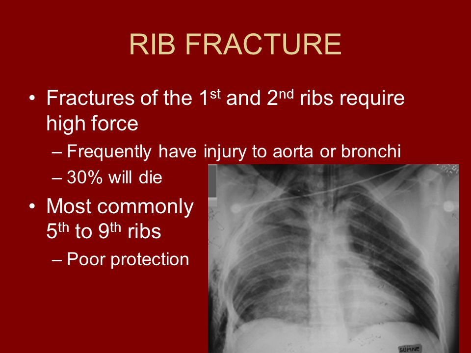 RIB FRACTURE Fractures of the 1st and 2nd ribs require high force