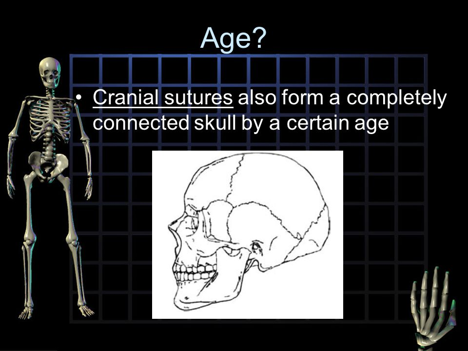 Introduction to Traumatic Deaths and Forensic Anthropology - ppt ...
