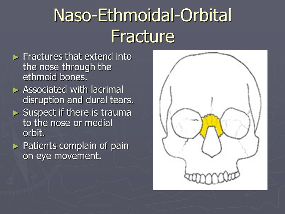 Maxillofacial Trauma Brief Overview Ppt Video Online