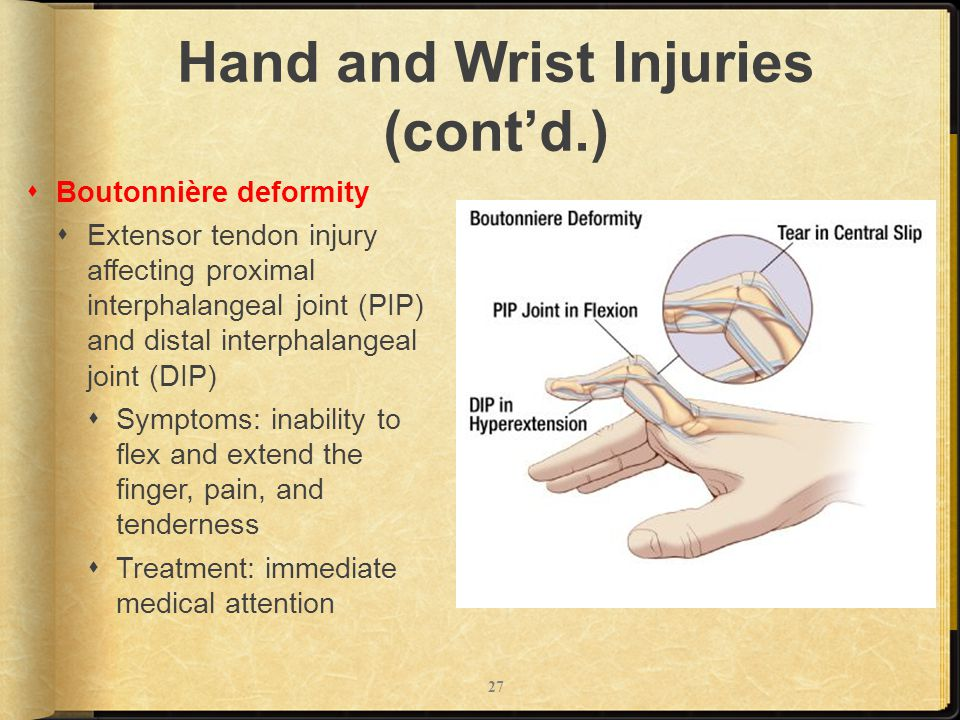special test for wrist and hand pdf