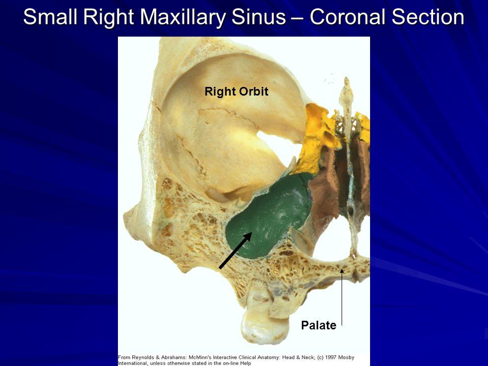 Gross Anatomy Of The Nasal Cavity Amp The Pharynx Ppt