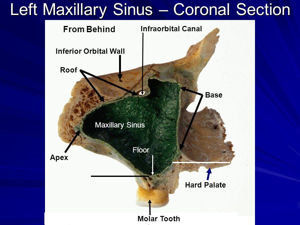 Gross anatomy of the nasal cavity the pharynx ppt for Floor of the maxillary sinus