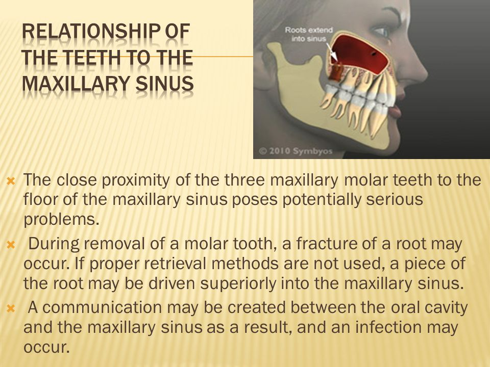 how to tell between sinus and tooth infection