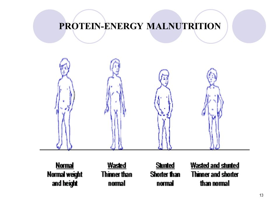 protein energy malnutrition Protein-energy undernutrition (peu), previously called protein-energy malnutrition, is an energy deficit due to deficiency of all macronutrients it commonly includes deficiencies of many micronutrients peu can be sudden and total (starvation) or gradual severity ranges from subclinical deficiencies to obvious wasting (with edema, hair loss.