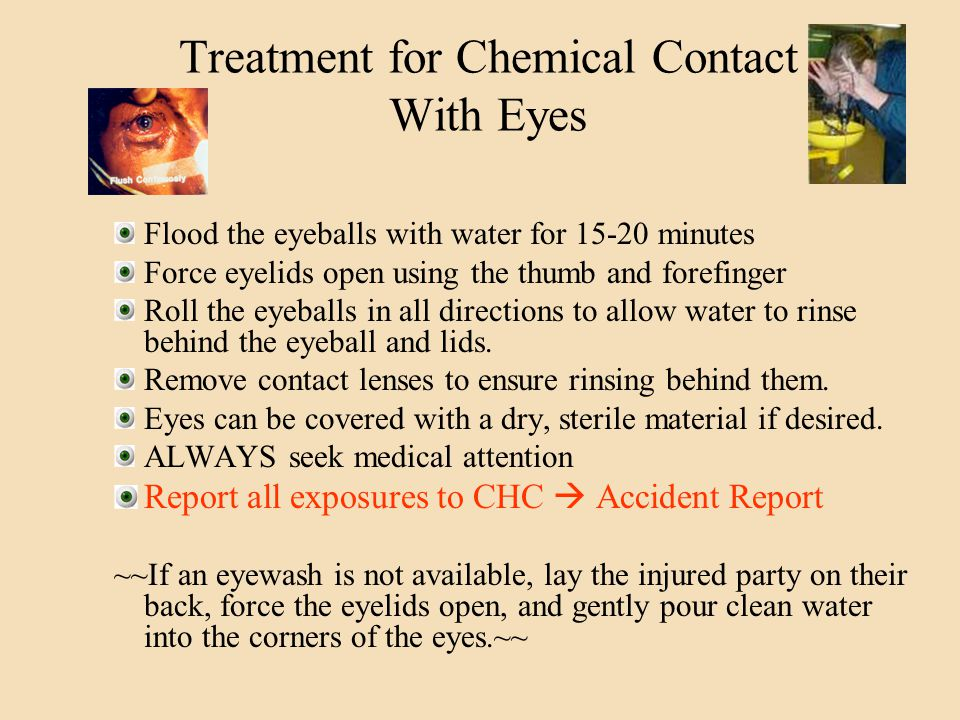 Treatment for Chemical Contact With Eyes