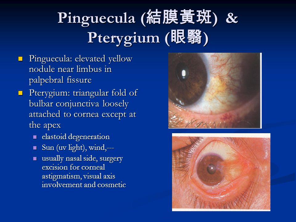 viral conjunctivitis steroid eye drops