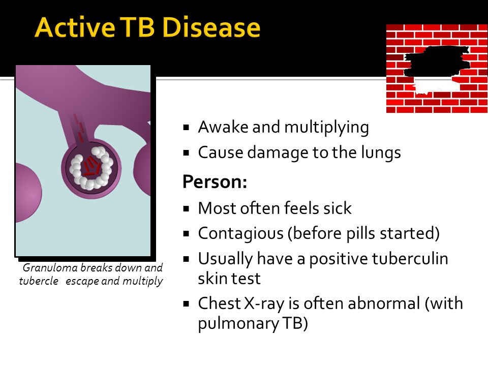 Active tuberculosis contagious