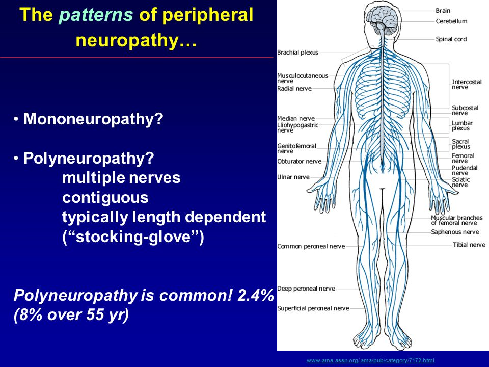 An Approach To Peripheral Neuropathy Ppt Video Online