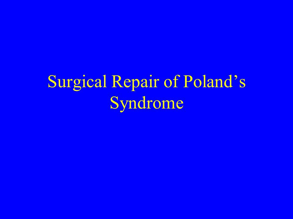 an analysis of the polands syndrome Summary poland's syndrome classically consists of the combination of  unilateral aplasia of the sternocostal head of the pectoralis major muscle and an .