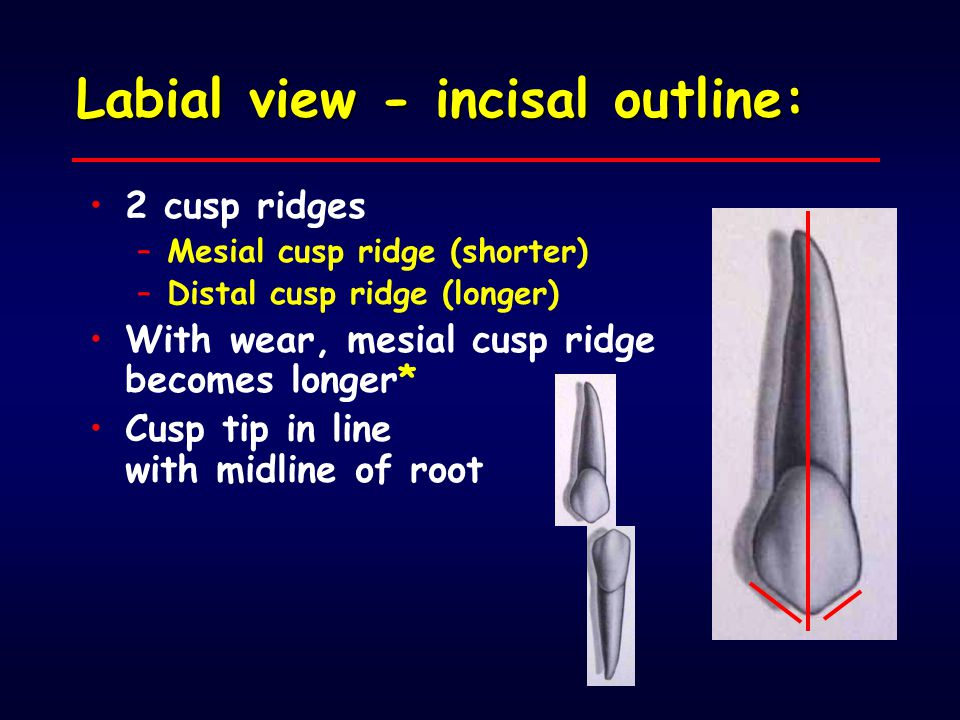 Labial view - incisal outline: