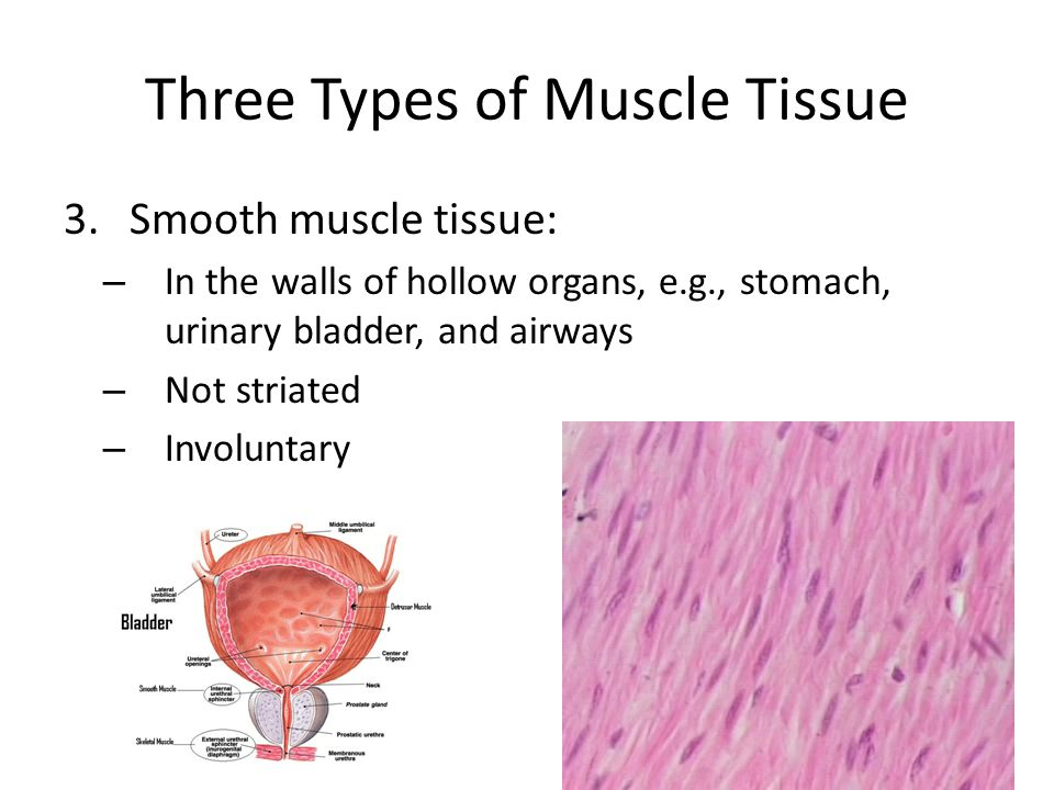 three types of muscle tissue Name and briefly describe the three types of muscle tissue skeletal muscle -- skeletal muscle is striated muscle and is voluntary (it can be controlled consciously.