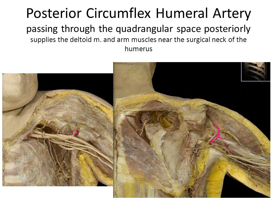Posterior Circumflex Humeral Artery passing through the quadrangular space posteriorly supplies the deltoid m.