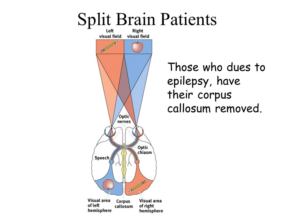 Split Brain Patients Those who dues to epilepsy, have their corpus callosum removed.