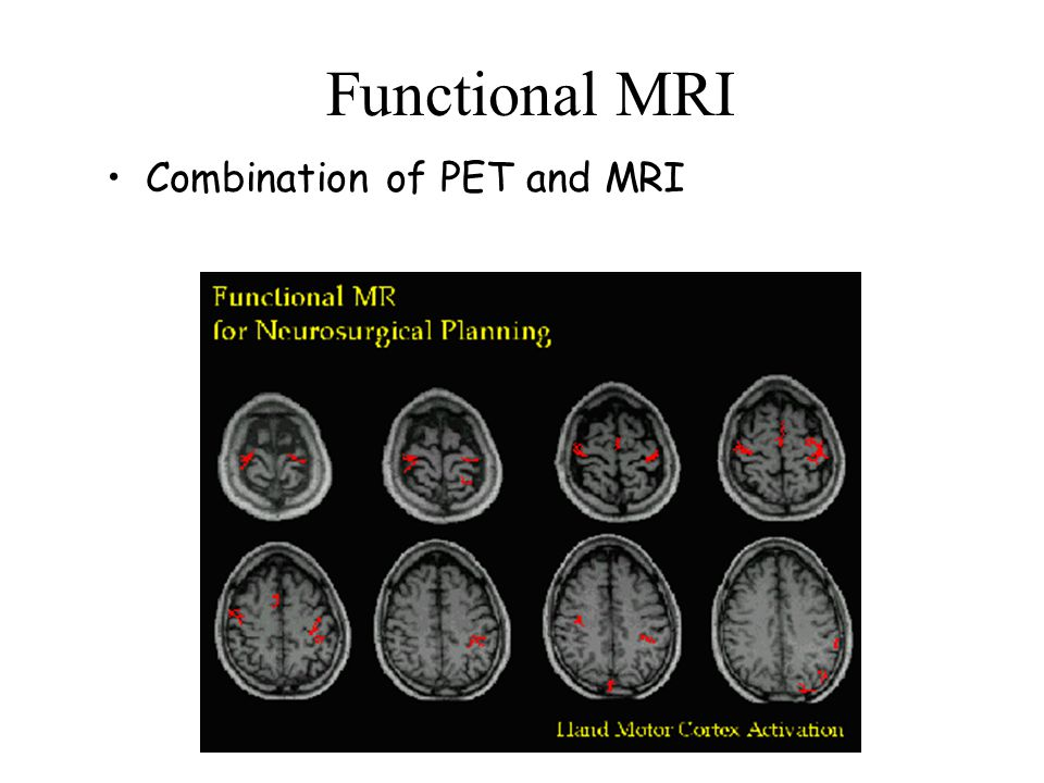 Functional MRI Combination of PET and MRI
