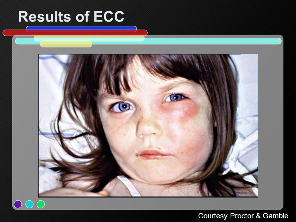 Results of ECC Courtesy Proctor & Gamble