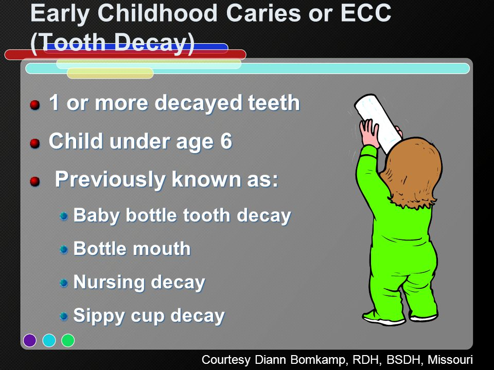 Early Childhood Caries or ECC (Tooth Decay)