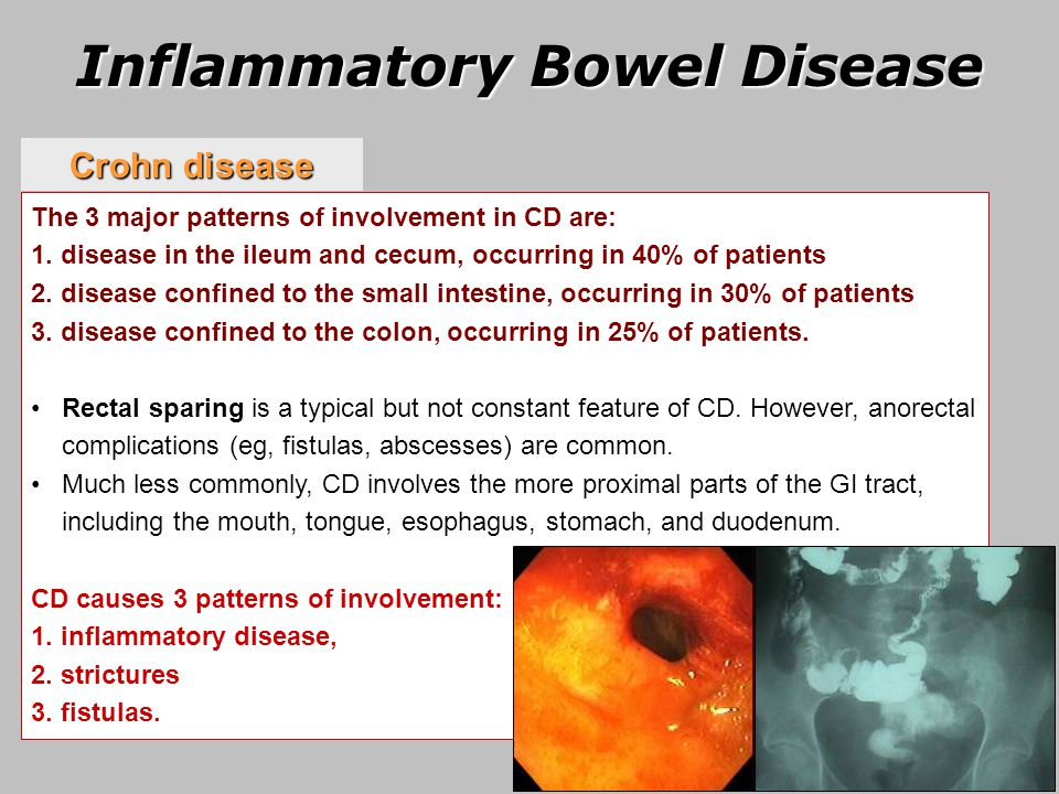 inflammatory bowel disease essay Wwwgeriatricsandagingca 53 inflammatory bowel disease in the elderly epidemiology and pathophysiology the inflammatory bowel diseases— crohn's disease (cd) and.