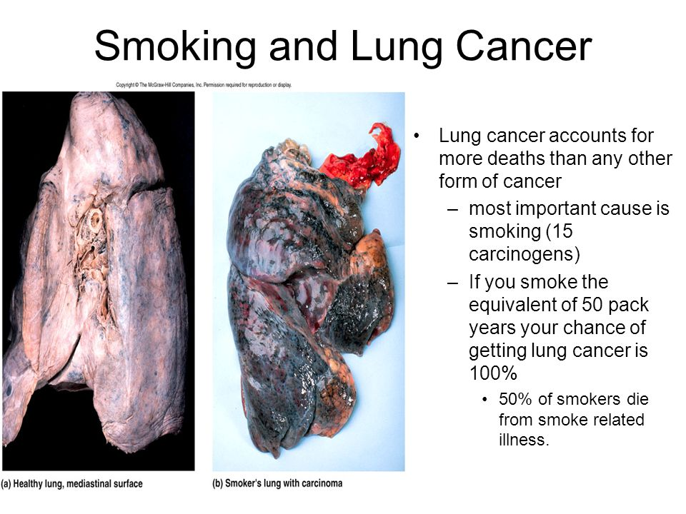the deaths caused by lung cancer and esophagus cancer due to smoking Lung cancer: a leading cause of death even the pressure placed on the esophagus can cause sever from lung cancer and other smoking related diseases.