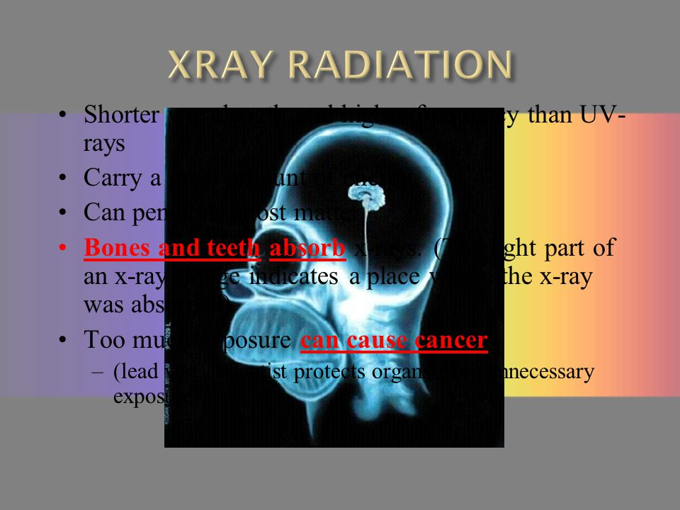 XRAY RADIATION Shorter wavelength and higher frequency than UV-rays