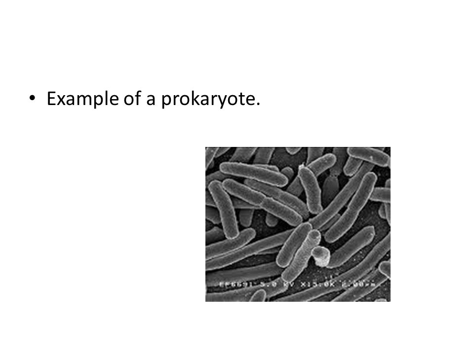 Example of a prokaryote.