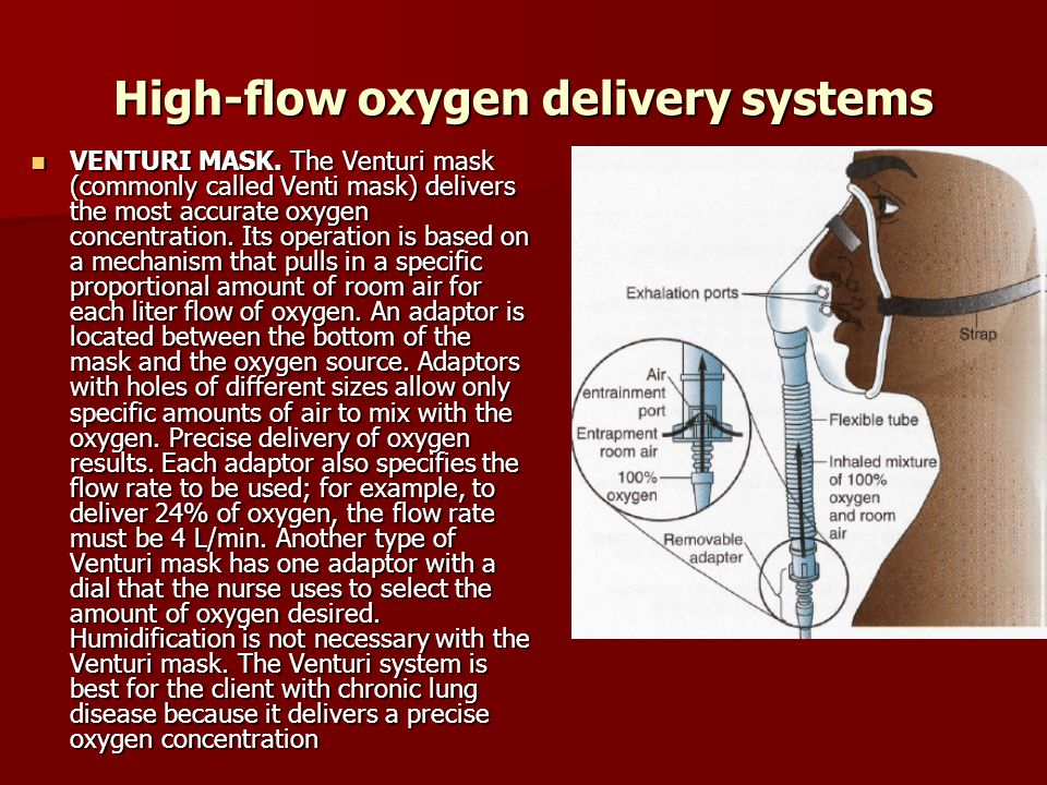 High-flow oxygen delivery systems
