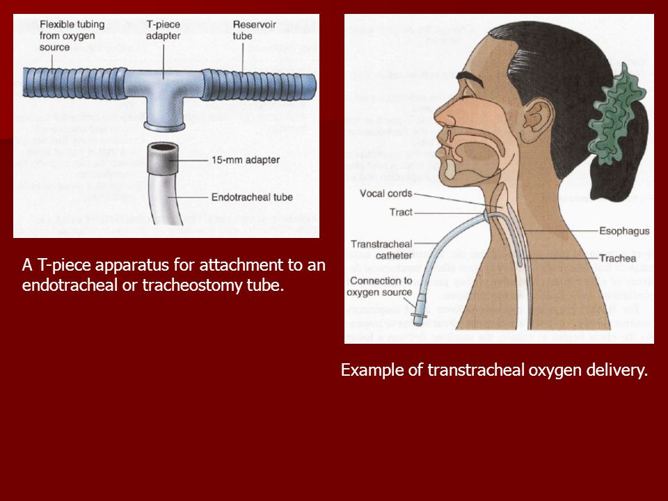 A T-piece apparatus for attachment to an endotracheal or tracheostomy tube.