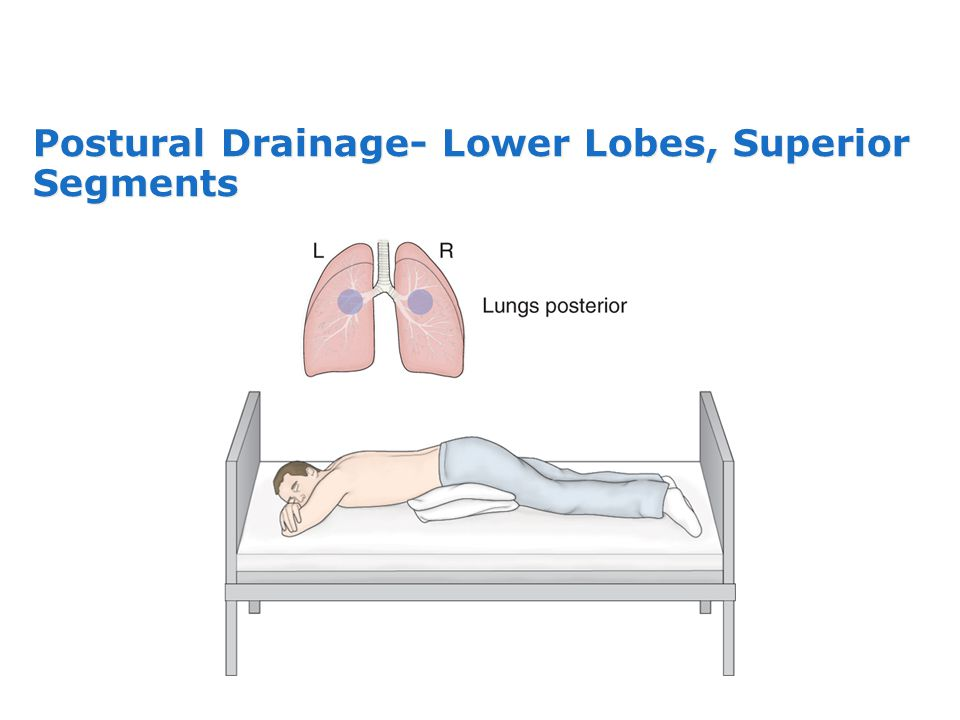 Postural Drainage- Lower Lobes, Superior Segments