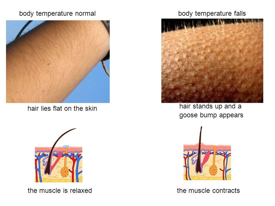 Body temperature