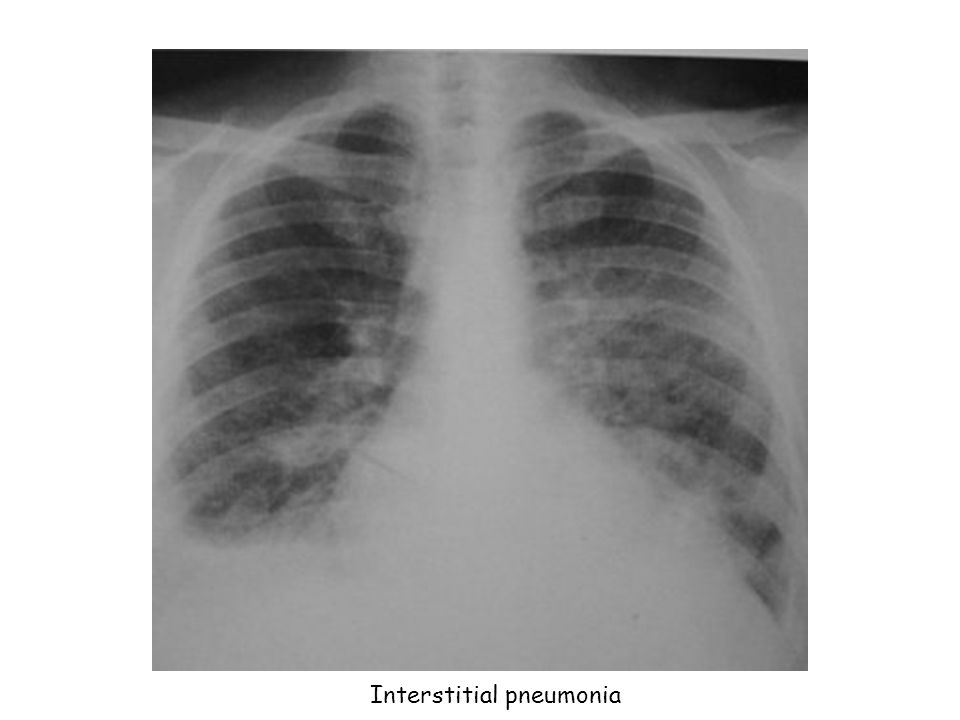 Interstitial pneumonia