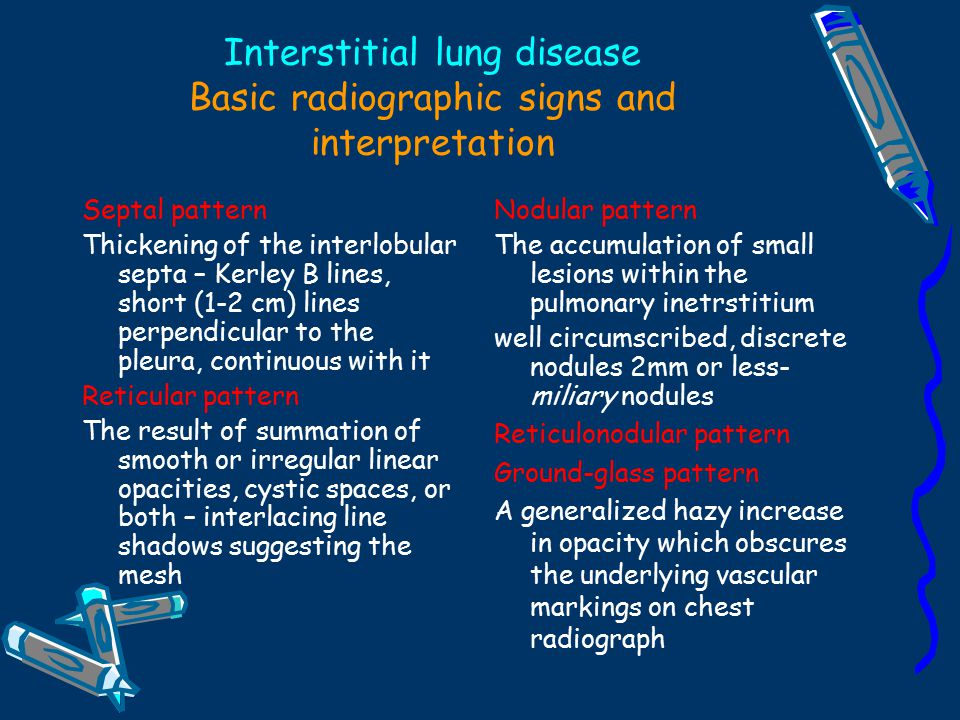 Radiology Imaging Of The Chest  Ppt Video Online Download. Rockstar Signs. Traffic Hyderabad Signs Of Stroke. Visual Basic Signs. Square Signs Of Stroke. Negatives Signs Of Stroke. Horns Signs Of Stroke. Llr Test Signs Of Stroke. Library Collection Signs Of Stroke