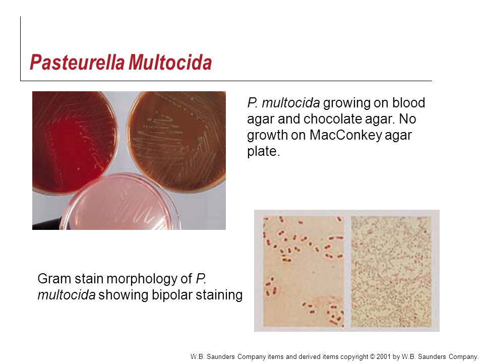 Haemophilus And Other Fastidious Gram Negative Rods Ppt