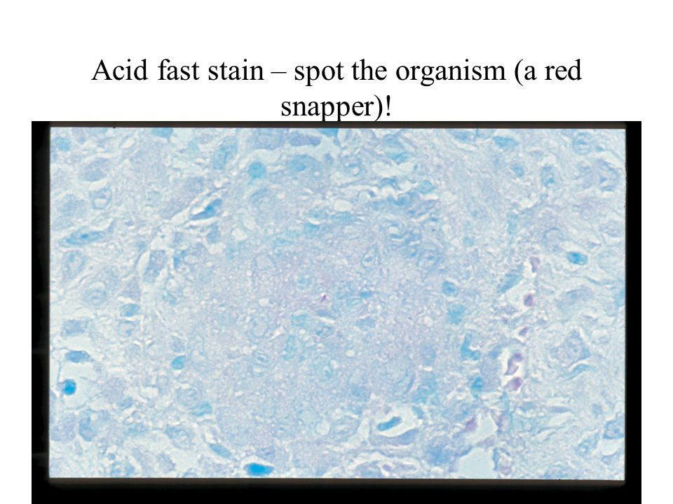 Acid fast stain – spot the organism (a red snapper)!