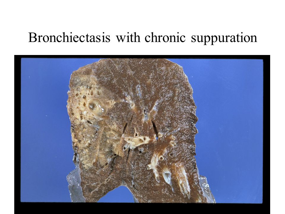 Bronchiectasis with chronic suppuration