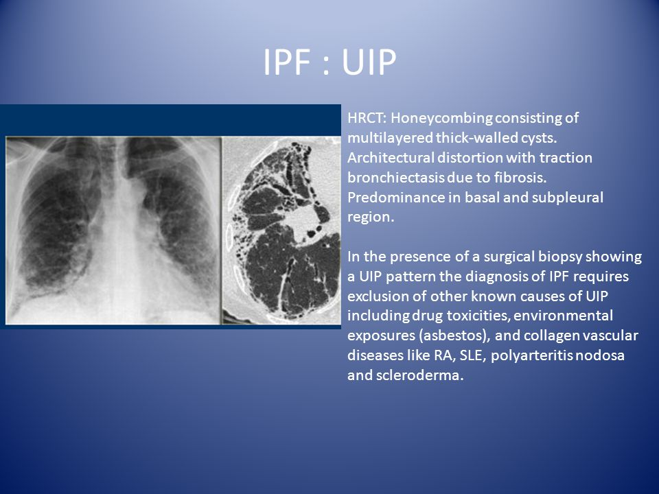 Diffuse Parynchmal Lung Disease How To Approach Ppt